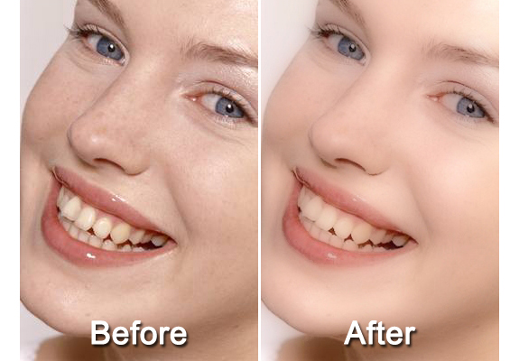 Magic Skin Filter, Photo Editing Software Screenshot